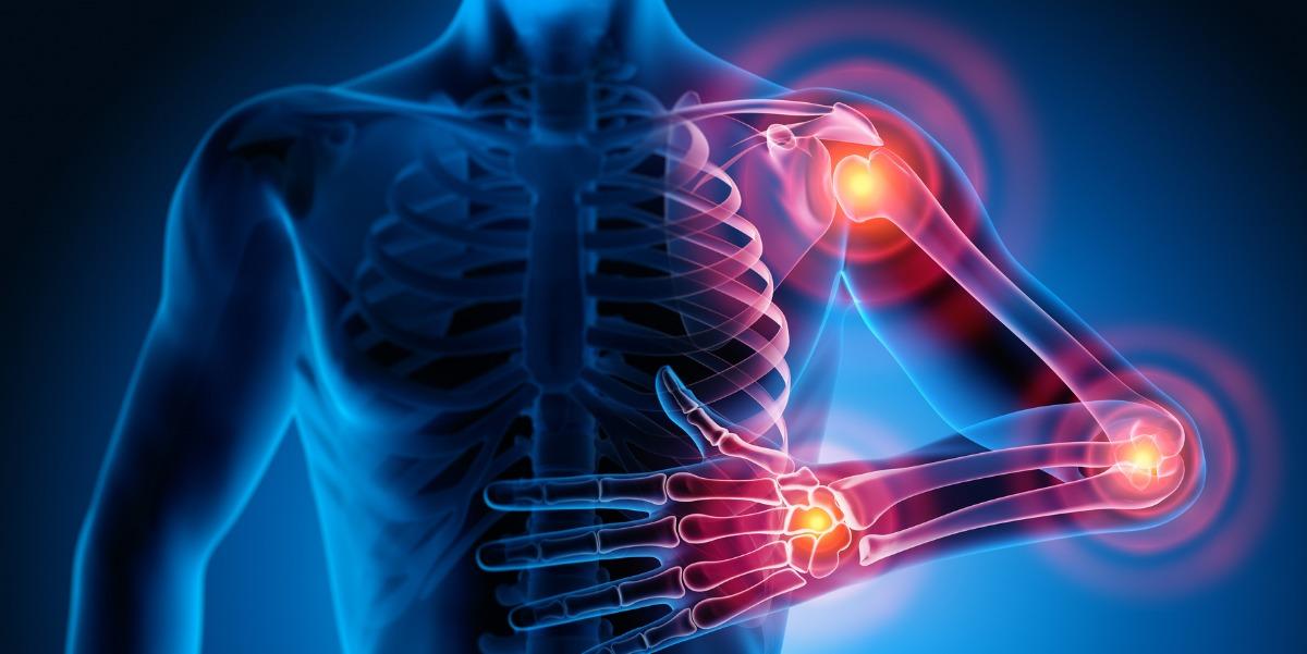 Rheumatology conditions